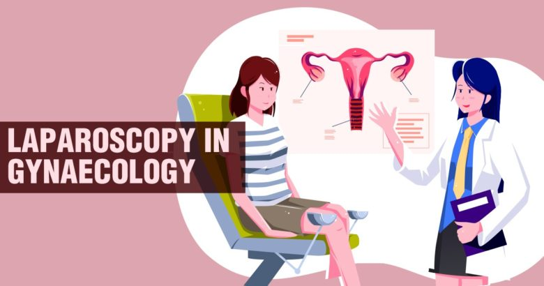 Laparoscopy in Gynaecology